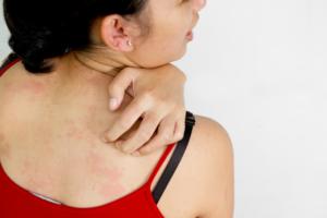 Jak złagodzić objawy atopowego zapalenia skóry?