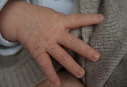 Atopowe zapalenie skóry, czyli choroba alergiczna skóry
