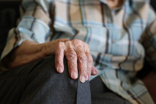 Jak wygląda atopowe zapalenie skóry u seniora?