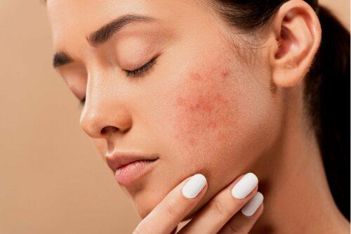 Naturalne kosmetyki na trądzik – dlaczego warto?